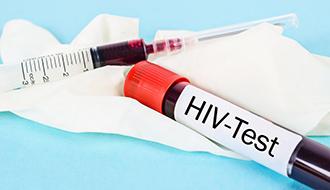 HIV Testing Harley Street