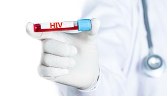HIV Antibody & P24 Antigen