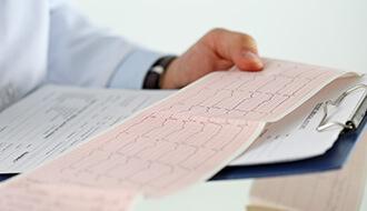 1-week ECG